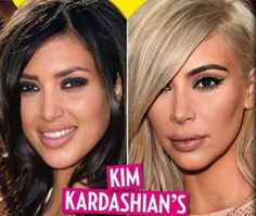 Plastic Surgery Magazine   Kim Kardashian Plastic Surgery Procedures and Proof   http://plasticsurgerymagz.com