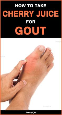 As per many medical studies cherry juice for gout is one of the best natural solutions for treating the problem. Cherry Juice For Gout, Cherry Drink, Natural Remedies For Gout, Gout Remedies, Health Remedies, Best Smoothie Recipes, Good Smoothies, What Foods Cause Gout, Foods Good For Gout