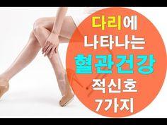 다리에 나타나는 혈관건강 적신호 7가지