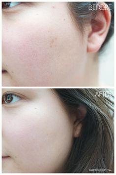 korean-skincare-cosrx-aha-bha-clarifying-treatment-toner-before-after-acne