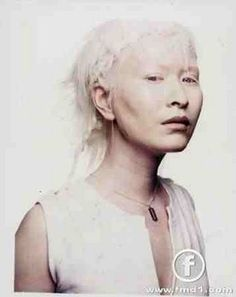 Albinism is beautiful Melanism, White Blonde Hair, Hazel Eyes, Interesting Faces, Guys And Girls, Nature, Photography, Beautiful People, Simply Beautiful