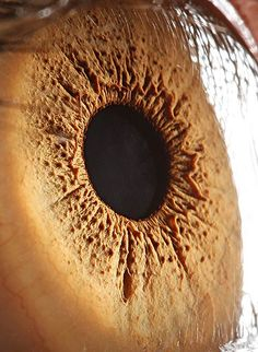 Eye > Suren-Manvelyan