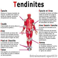 Tendinitis The 3 origins of this painful injury Yoga Fitness, Health And Nutrition, Health Fitness, Human Body Science, Accupuncture, Body Map, Muscle Anatomy, Yoga Positions, Health Trends