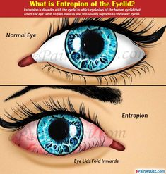 Entropion of the Eyelid or Inverted Lower Eyelid Unable To Sleep, Eye Pain, Onion Juice, Ear Infection, Ear Warmers, Pain Relief, Factors, Disorders, Surgery