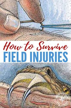 How to Survive Field Injuries — From snake bites to sore teeth, this guide will help you tackle almost any accident. All of these injuries are quite common and a little trip to the doctor can normally sort these out! What if there were no doctor? What if you were stranded or SHTF?