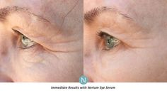 We all know the telltale signs of aging  crow's feet wrinkles discoloration. Fight them with Nerium Age-Defying Cream. http://ift.tt/29LXurQ