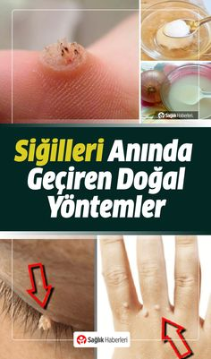 Siğillerin çıkmasını sonsuza dek durdurmanıza yardımcı olacak en iyi do… We've put together the best natural ways to help stop warts from growing out forever. Here are the natural ways to get rid of warts… Natural Health Remedies, Herbal Remedies, Gut Health, Health And Wellness, Get Rid Of Warts, Have A Good Sleep, Yoga Posen, Better Life, How To Lose Weight Fast