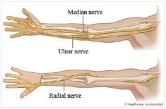 You have a pinched nerve in your elbow. It depends on how severely compressed your ulnar nerve is. Muscle Anatomy, Body Anatomy, Occupational Therapy, Physical Therapy, Nerve Anatomy, Radial Nerve, Ulnar Nerve, Elbow Pain, Hand Therapy
