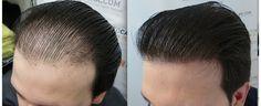 """وقد استمع الجميع أو حتى ينظر قصص الرعب زرع الشعر، وربما في مجلة، عبر الإنترنت أو أسوأ من ذلك ينظر ما هو واضح """"المقابس"""" في صديق أو قريب المسنين. ومع ذلك جراحة زراعة الشعر وقفز قفزات وملزمة في السنوات الأخيرة لجعله خيارا قابلا للتطبيق وآمنة وليس مخاطرة كبيرة جدا بالنسبة لأولئك الذين يعانون من نمط صلع الذكور، العديد من المشاهير مثل نيكولاس كيج، بريندان فريزر ماذر MOcanhey، دواين جونسون ( 'الصخرة '، WWE) سلمان خان (بوليوود) وحتى رئيس الوزراء الايطالي سيلفيو برلسكوني يعتقد أن خضعوا لجراحة زرع…"""