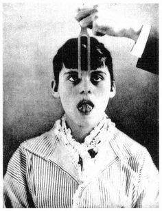 """The hypnotized patient and the tuning fork. From Paul Richer, """"Gonflement  du cou chez un hystérique,""""  Nouvelles Iconographie de la Salpêtrière 2  (1889), plate 34.  Photo courtesy Wellcome Institute Library, London."""
