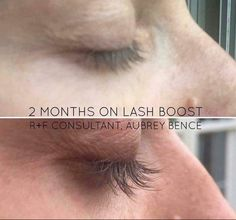 The wait is over! Introducing Rodan + Fields LASH BOOST for fuller-looking, longer-looking, darker-looking eyelashes! So how does Lash Boost work exactly? 1. First, it MOISTURIZES the eye lash with sodium hylauronate!  2. Next, Lash Boost provides NUTRITION to the lash through 3 different amino acid peptides!  3. Lastly, Lash Boost PROTECTS the lash from breakage and brittleness with biotin and keratin! If that wasn't enough, here's what else differentiates LASH BOOST in the marketplace!