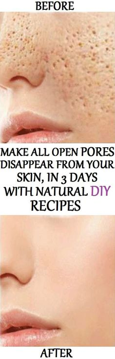 Pores are small openings on the skin which allow it to breathe. They are almost impossible to be seen with the naked eye, but may grow in size as we get older. Enlarged pores look really unpleasant an Beauty Care, Beauty Skin, Health And Beauty, Skin Tips, Skin Care Tips, Face Care, Body Care, Beauty Secrets, Beauty Hacks