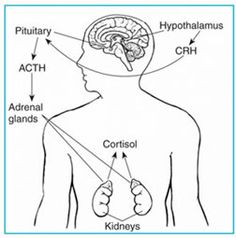 Addison's Disease.  Insidious and usually progressive hypofunctioning of the adrenal cortex.  Both mineralcorticoids and glucocorticoids are deficient.  Symptoms most often include hyperpigmentation and hypotension. Adrenal crisis can manifest as asthenia, severe lower body pain, peripheral vascular collapse, and (if allowed to progress) renal shut down. Many patients who lose adrenal function appear fine, but experience crisis when under physiologic stress; shock and fever may be only…
