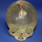 3D Printing and Telemedicine help in the Cranial Surgery of a 6-Month-Old Child #3DPrintingIsOurFuture