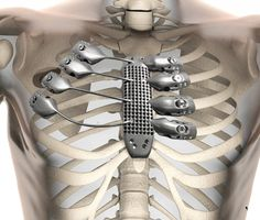 A Spanish cancer patient has received a 3D-printed titanium sternum and rib cage. Suffering from a chest wall sarcoma (a type of cancerous tumor that grows, in this instance, around the rib cage), the 54 year old man needed his sternum and a portion of his rib cage replaced.