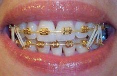 Today everyone wants to look fair and smart so they even need perfect teeth alignment for keep the fairness. The teeth misalignment can damage the entire face structure so everyone goes for dental … Cute Braces Colors, Cute Girls With Braces, Dental Braces, Teeth Braces, Dental Teeth, Dental Care, Gold Braces, Fake Braces, Braces Tips