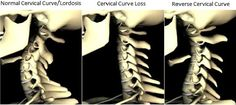 Could cervical curve loss be a common cause of neck pain? http://www.uppercervicalhealthcentersboise.com/blog/cervical-curve-loss-a-common-cause-of-neck-pain #uppercervicalboise #neckpainreliefboise