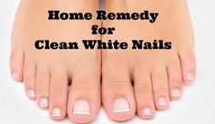 Here's a home remedy for clean white nails and it really works!!