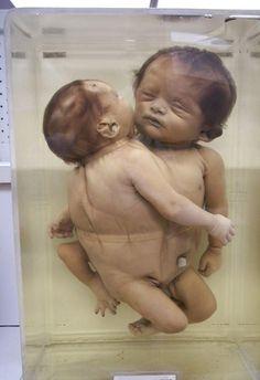 Deformed babies born after the bombing of Hiroshima and Nagasaki. Hiroshima Bombing, Creepy History, Chernobyl Disaster, Human Oddities, Strange Events, Historia Universal, Manhattan Project, E Mc2, Nagasaki