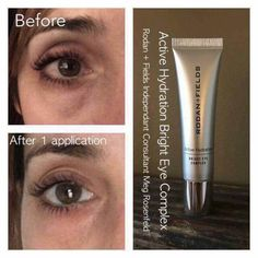Rodan + Fields: Active Hydration Bright Eye Complex is great to reduce the appearance of dark circles and bags under your eyes. Rodan Fields Skin Care, My Rodan And Fields, Dry Under Eyes, Roden And Fields, Dark Circle Cream, Dark Eye Circles, Hydrating Eye Cream, Rodan And Fields Consultant, Under Eye Puffiness