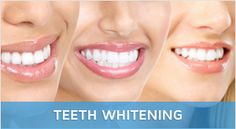 Our team works at Invisalign braces dentist queen street west toronto we are committed to giving you the teeth and the smile you've always wanted.
