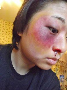 special effects makeup  bruising