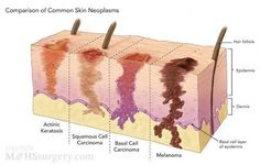 This photo is a description of the stages of skin cancer before getting to the worst one which is melanoma. I believe it is important because it can show people if they think that they might have any of the cancers.