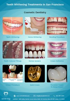 Raina Dental Rainadental On Pinterest