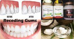 Regrow Receding Gums Naturally