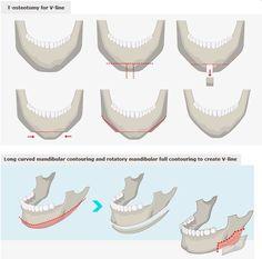 [Facial contouring - V-line mandibular contouring] Korean plastic surgery, plastic surgery in korea, cosmetic surgery in korea, V-line surgery, facial contouring, jaw reduction, chin surgery, T-osteotomy in korea