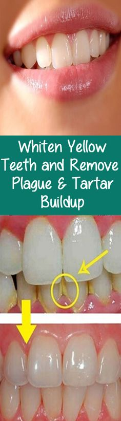Tartar is actually a mineral deposit on your teeth that with time increases, and you must take care of that.
