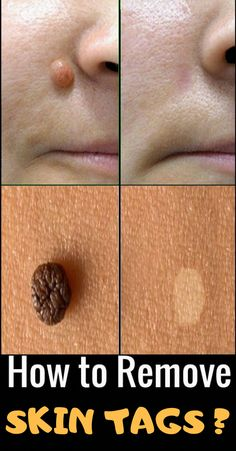 Skin tags are known as Acrochorda and They're Really small Skin growths which have been due to massaging or frictions. But, they could still lead to distress and make you feel unpleasant. Doug Willen is offering you a simple and easy way to get rid of Health Remedies, Home Remedies, Natural Wart Remedies, Herbal Remedies, Garlic Uses, Skin Growths, Skin Tag Removal, Mole Removal, How To Remove