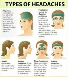 types of headaches and causes #headachechart
