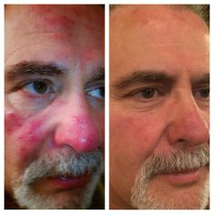 Nerium Before and After.