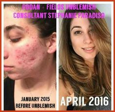 Combat acne and post-acne marks with our clinically proven Rodan + Fields UNBLEMISH acne blemish treatment regimen. Learn more about UNBLEMISH. Acne Skin, Acne Scars, Acne Face, Skin Care Regimen, Skin Care Tips, Blemish Remedies, Rodan And Fields Consultant, Independent Consultant, Face Mapping