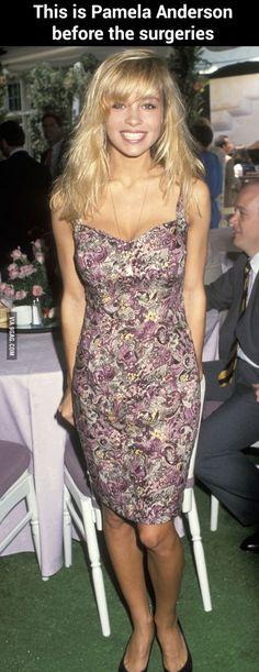 Pamela Anderson before surgeries