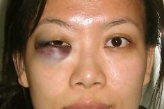 what is ecchymosis of the skin - Google Search Cuts And Bruises, Special Effects, Real Life, Google Search