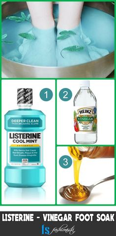 These seven Listerine foot soak recipes will change your perception about footbath, unlike the traditional Listerine, vinegar and water foot soak. care soak 7 Listerine Foot Soak Recipes for Baby Soft Feet Listerine Cool Mint, Listerine Foot Soak, Foot Soak Vinegar, Vinegar Pie, Foot Soak Recipe, Toenail Fungus Remedies, Manicure Y Pedicure, Pedicures, Hair Treatments