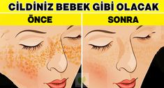 acne treatment Acne Treatment apple cider vinegar Acne Treatment diy Acne Treatment how to get rid Acne Treatment overnight Acne Treatment products Back Acne Treatment 7 tipp a régi időkből a pattanások okozta hegek és a bőrhibák ellen Cystic Acne Treatment, Back Acne Treatment, Natural Acne Treatment, Natural Acne Remedies, Scar Remedies, Acne Skin, Acne Scars, Oily Skin, Acne Face