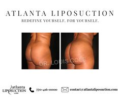 4af36ebe9b4 At the Atlanta Liposuction Specialty Clinic