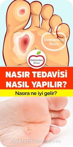 Natural Medicine, Natural Remedies, Health, Medicine, Health Care, Natural Treatments, Salud