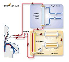 The Prometheus system (Fresenius Medical Care) is a new device based on the combination of albumin adsorption with high-flux hemodialysis after selective filtration of the albumin fraction through a specific polysulfon filter. It has been studied in a group of eleven patients with hepatorenal syndrome (acute-on-chronic liver failure and accompanying renal failure).