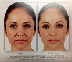 Juvederm- a filler used here for the paranthesies around the mouth, and what a difference it makes. Lines Around Mouth, Face Fillers, Advanced Skin Care, Reverse Aging, Face Exercises, Anti Aging Facial, Skin Care Treatments, Beauty Hacks, Beauty Tips