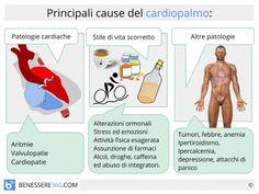 Palpitazioni: cause, rimedi e tipi di cardiopalmo