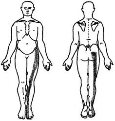 Patients who present with lower back pain that is radiating into their legs and feet may be diagnosed with a lumbar radiculopathy. A lumbar radiculopathy includes anything that causes irritation, compression or dysfunction of one or more of the lumbar (low back) nerves. The lumbar nerve roots are sensitive to any type of irritation or pressure- and can cause those nerve roots to not function properly. The general term we often use for a lumbar radiculopathy is Sciatica.