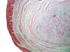 Epiglotis. Se observa que está compuesta de cartílago elástico y cubierta por epitelio plano estratificado en su superficie lingual.