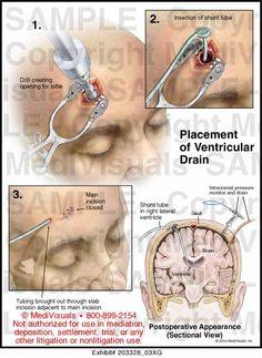 EVD external ventricular drain