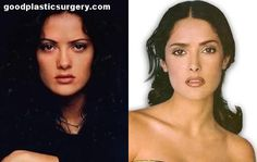 Salma Hayek, before-&-after.bl… Salma Hayek, before-&-after. Salma Hayek, Bad Plastic Surgeries, Plastic Surgery Before After, Celebrities Before And After, Celebrity Plastic Surgery, Natural Makeup Looks, Without Makeup, Cosmetic Procedures, Beyonce