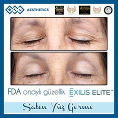Saten Yüz Germe işlemi Dünyada (Periorbital Wrinkle Reduction) Göz Kapağı ve Çevresindeki Kırışıklıkların Tedavisini klinik çalışmalar ile kanıtlamış FDA (Amerika Sağlık Örgütü) tarafından onaylı tek sistemdir. Göz kapağındaki düşüklüğün giderilmesi yorgun görünümden kurtulmayı sağlar aynı zamanda kaşlarınızın homojen ve gerektiği kadar kalkmasıda istenilen bir diğer faktördür. #BTLAesthetics #ExilisElite #SatenYüzGerme