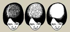Kadınlarda Saçlarda Dökülme Saç Dökülmesi Alopesi,Gebelikte (Hamilelikte) Saç Dökülmesi Gebede Hamilede Saçlarda Dökülme Tedavisi İlaçları İlacı